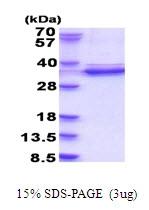 AR51698PU-N - CDK2