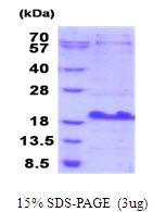 AR51700PU-N - MUCL1 / SBEM