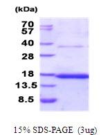 AR51704PU-N - CD37