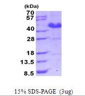 AR51709PU-N - L-asparaginase