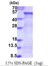 AR51722PU-N - Alpha-L-fucosidase 2 / FUCA2
