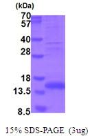 AR51737PU-N - Myostatin