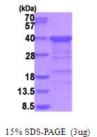 AR51741PU-N - CGREF1