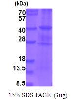 AR51744PU-N - B-Raf proto-oncogene