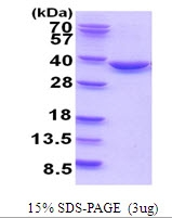 AR51754PU-N - TATDN1