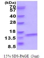 AR51767PU-N - ATP6V1F