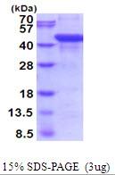 AR51797PU-N - Aspartylglucosaminidase / AGA