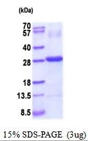 AR51822PU-N - CTHRC1