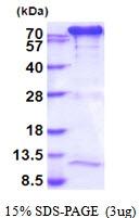 AR51823PU-N - Transglutaminase-2 (TGM2)