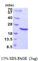 AR51828PU-N - Heat shock protein beta-6 / HSPB6