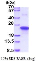 AR51833PU-N - TIMP1