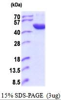 AR51835PU-N - ACP6 / LPAP