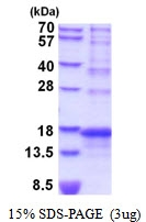 AR51838PU-N - Agouti-related protein / AGRP