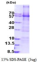 AR51841PU-N - Amine Oxidase A / MAOA