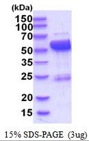 AR51849PU-N - Cytosol aminopeptidase