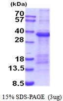 AR51854PU-N - TIMD1 / HAVCR1