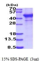 AR51855PU-N - CD75 / ST6GAL1