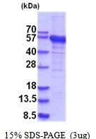 AR51858PU-N - RNMTL1