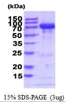 AR51861PU-N - Transglutaminase-2 (TGM2)