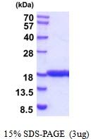 AR51864PU-N - IL1F10 / FIL1T