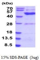 AR51869PU-N - Ethanolamine kinase 2