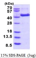 AR51871PU-N - Aminomethyltransferase