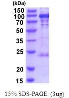 AR51883PU-N - Glycogen phosphorylase liver form