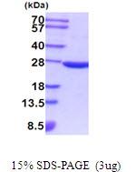 AR51896PU-N - Superoxide dismutase 2 / SOD2