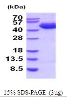 AR51912PU-N - SERPINB3 / SCCA1