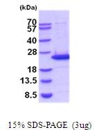 AR51913PU-N - Lipocalin-2