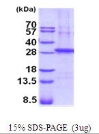 AR51915PU-N - SGCB (Beta-sarcoglycan)