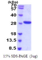 AR51918PU-N - Complement factor D