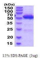 AR51923PU-N - ALDH2