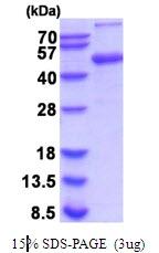 AR51932PU-N - Alpha-2-HS-glycoprotein / AHSG