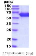 AR51933PU-N - Beta-hexosaminidase alpha / HEXA