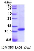 AR51942PU-N - Cystatin-D