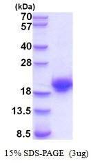 AR51943PU-N - Cystatin-F