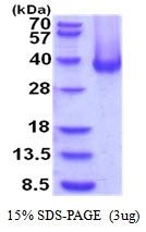 AR51944PU-N - Carbonic anhydrase 12