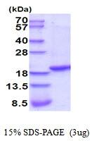 AR51948PU-N - Tumor necrosis factor (TNF-alpha)