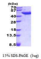 AR51951PU-N - Aminoacylase-1 / ACY1
