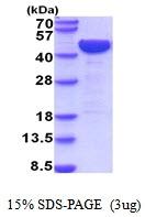 AR51953PU-N - LRPAP1 / A2MRAP