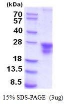 AR51954PU-N - CD74
