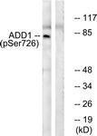 A0002-1 - Alpha-Adducin / ADD1