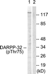 A0007-1 - DARPP32