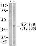 A0010-1 - Ephrin-B2