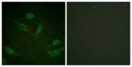 A0016-1 - Cytokeratin 18