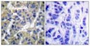 A0017-1 - Cytokeratin 8
