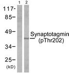 A0033-1 - Synaptotagmin-1