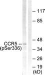 A0061-1 - CD195 / CCR5