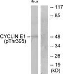 A0069-1 - Cyclin E1